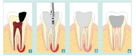 endodontdski postupak