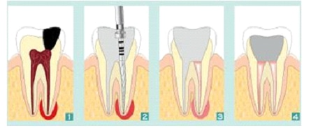 L'odontoiatria conservativa